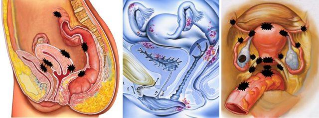 Эндометриоз яичника: симптомы, лечение, реабилитация, беременность