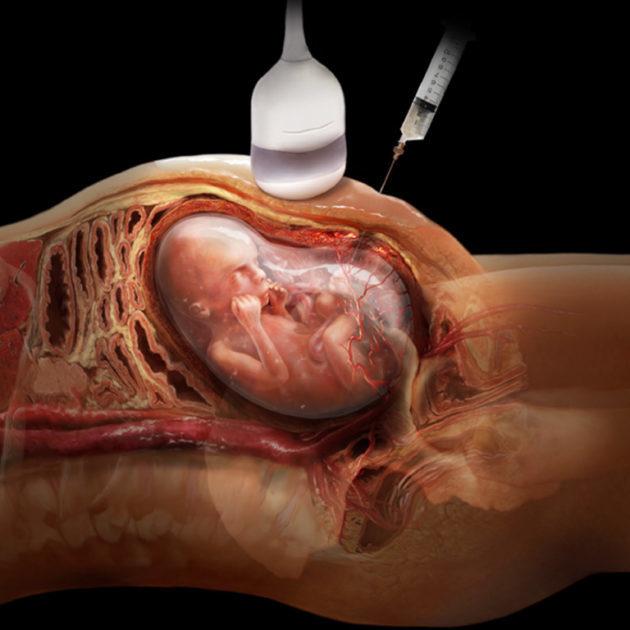 Аборт по медицинским показаниям: перечень, как проводится, отзывы