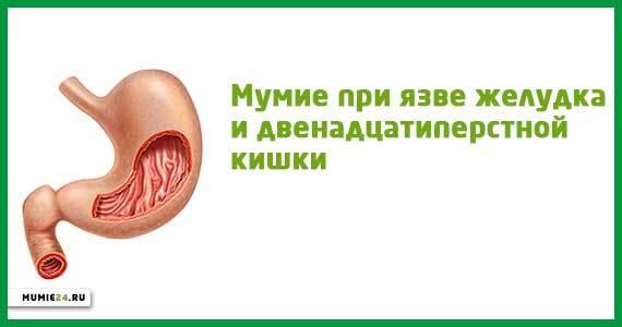 Мумие при язве желудка: полезные свойства и действие, как применять, отзывы