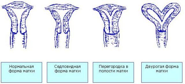 Что такое седловидная матка