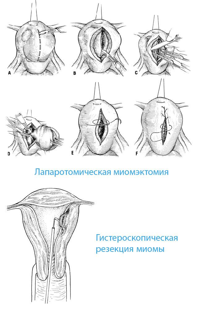 Что такое миомэктомия