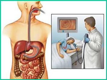 Обострение гастрита при беременности: причины, симптомы, лечение, диета