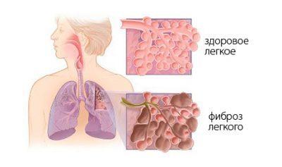 Что такое фиброз