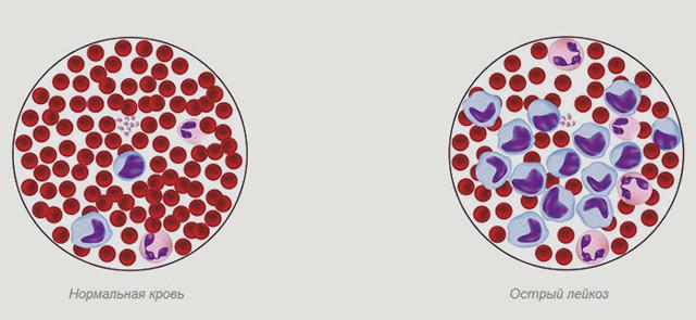 Причины лейкоза крови у детей и взрослых: почему он возникает