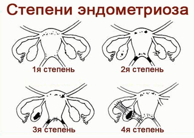 Чем опасен эндометриоз