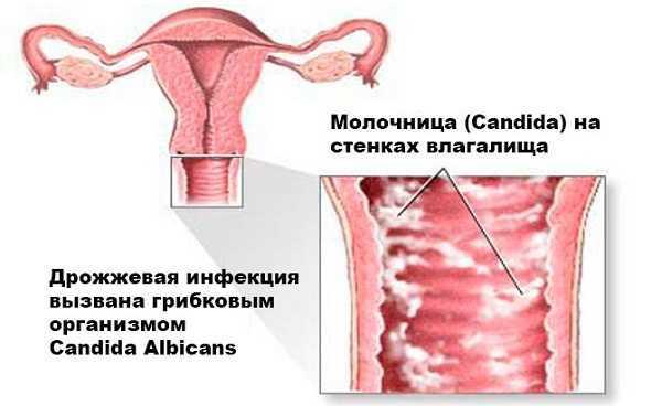 Левомеколь от молочницы