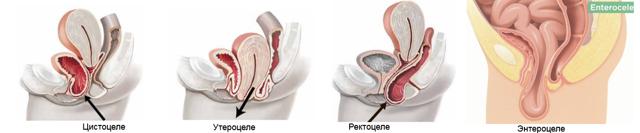 Симптомы опущение матки