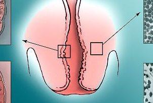 Рубцовая деформация шейки матки