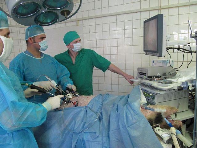 Удаление матки лапароскопическим методом