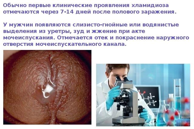 Хламидии у мужчин: симптомы и первые признаки, диагностика, фото