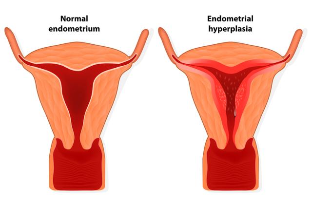 Разрастание эндометрия в матке