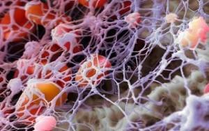 Норма фибриногена в крови: почему бывает повышен и как его снизить