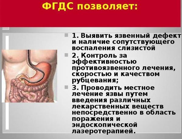 Отзывы о процедуре ФГС желудка пациентов и врачей