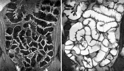 МРТ желудка и кишечника: подготовка, что показывает, цены в Москве, отзывы