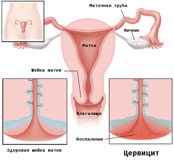 Что такое гиперемия шейки матки