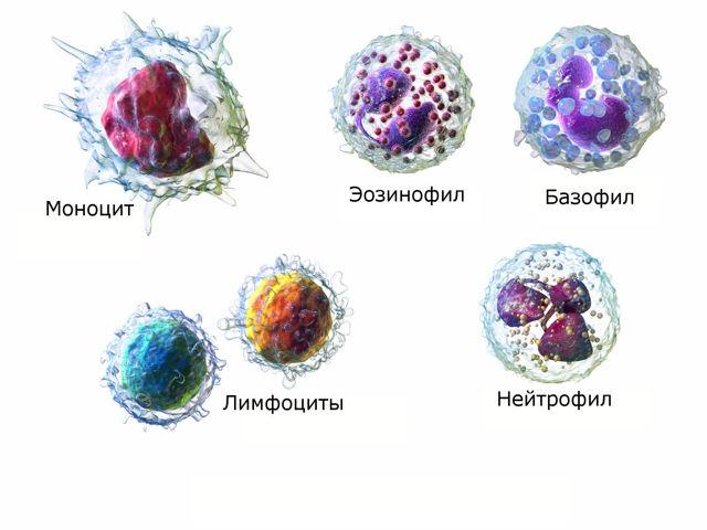 Лейкемоидная реакция крови лимфоцитарного, нейтрофильного, миелоидного типа