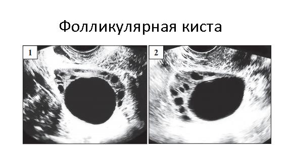 Киста яичника: симптомы и лечение женщины + фото, причины возникновения, признаки