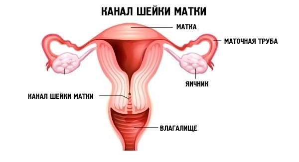 Что такое киста шейки матки