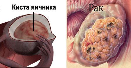 Может ли киста яичника перерасти в рак: когда образования перерождаются в злокачественные