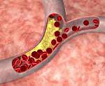 Атеросклероз сосудов головного мозга: симптомы, признаки и диагностика