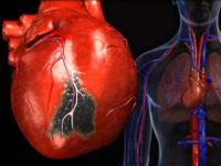 Миксома сердца (левого предсердия): причины, лечение