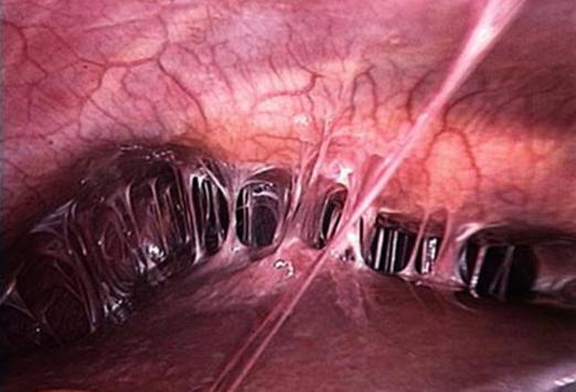 Спайки на яичниках: причины, симптомы, лечение и отзывы