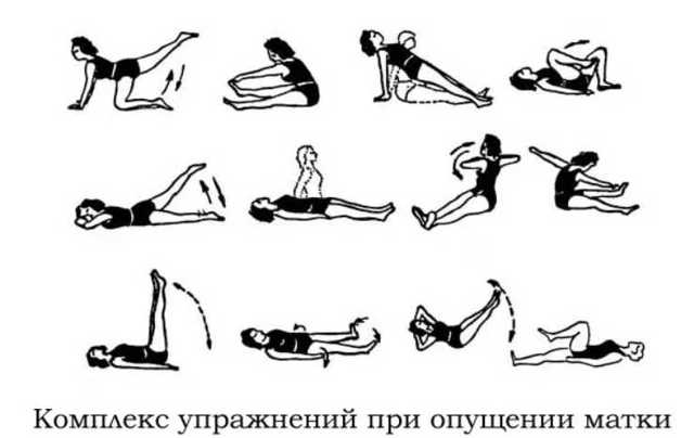 Упражнения при опущении матки Сергея Бубновского