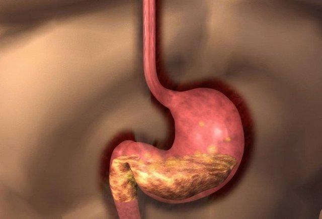 Смешанный гастрит: что это такое, острая и хроническая формы болезни, симптомы, медикаментозное и другое лечение, диета, примеры меню
