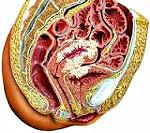 Опухоль матки: симптомы и лечение