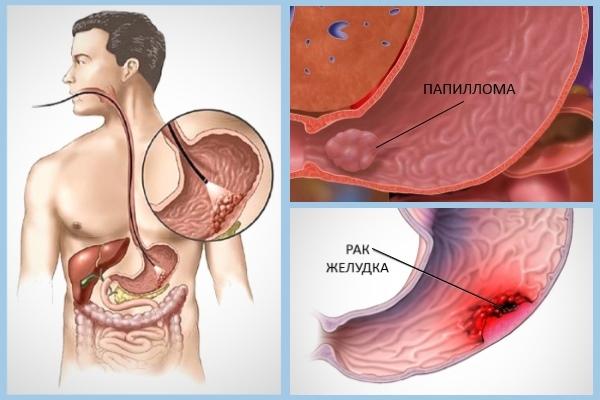 Папиллит желудка: что это, лечение народными средствами, есть ли опасность