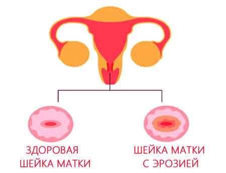 Что означает эрозия шейки матки