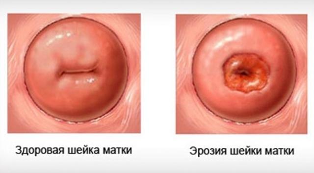 Лечение эрозии шейки матки у рожавших